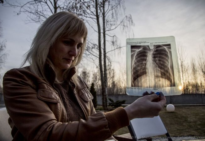 Galina Sviridenko shows an x-ray photograph of her son's curved spine in Novozybkov town in western Russia. was 11 years old when the deadly rain fell on Novozybkov.